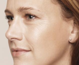 Usuwanie zmarszczek wokół oczu i ust