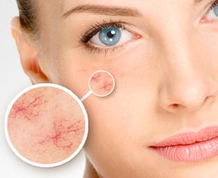 Zamykanie naczyń krwionośnych i usuwanie rumienia naczyniowego oraz trądziku różowatego laserem Alma Harmony